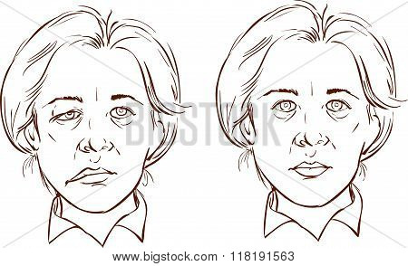 White Background Vector Illustration Of A  Facial Lopsided Illustration