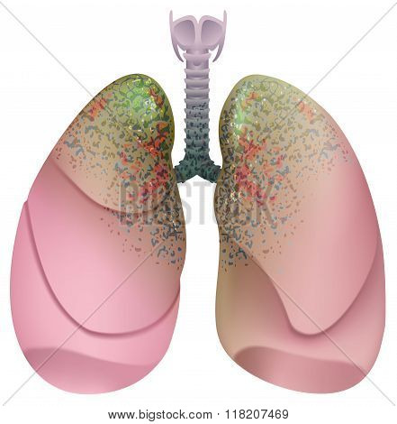 Respiratory system smoker. Lung cancer