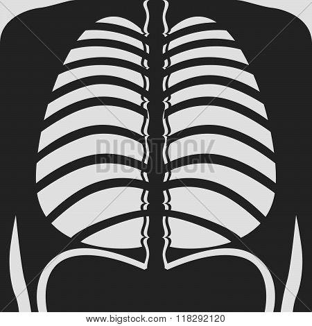 Fluorography