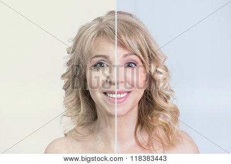 Skin care transformation