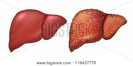 Liver of healthy person. Liver patients with hepatitis. Liver is sick person. Cirrhosis of liver. Re