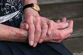 stock photo of dandruff  - Extreme sceriosis skin disease on the hands of an elderly female - JPG