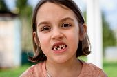 Portrait Of Toothless Child Girl Missing Milk And Permanent Teeth. poster