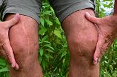 picture of scars  - Post surgery scars many years after knee reconstruction surgery - JPG