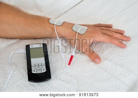 Person Hand With Electrodes