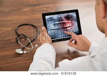 Doctor Looking At Human Teeth X-ray