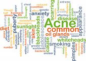 stock photo of puberty  - Background concept wordcloud illustration of acne - JPG