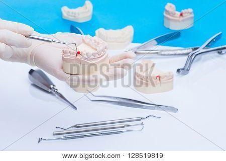 Dentist Examinates The Teeth Mold