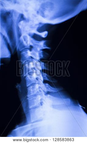 Spine Back Neck Xray Scan