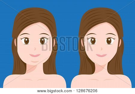 fat and thin women vector on blue background