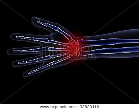 Skeleton X-ray - Wrist Pain