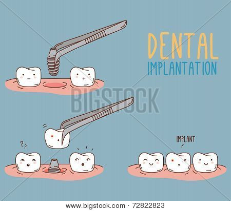 Comics about tooth replacement. Vector illustration for children dentistry and orthodontics.