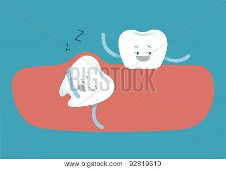 Sleepy tooth of impacted tooth