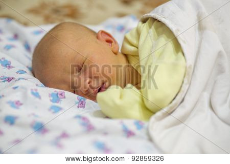 Jaundice in a newborn baby
