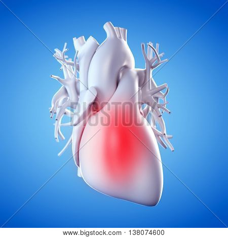 3d rendered illustration of an inflamed heart
