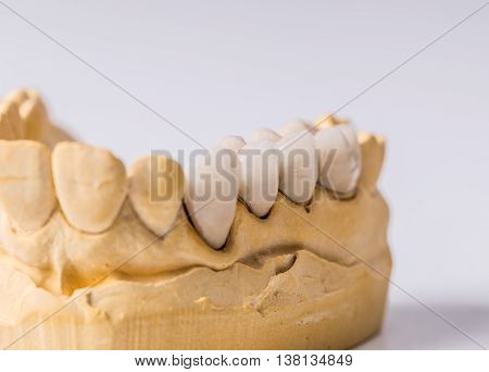 Dental prosthesis on the chalk model, stomatology concept