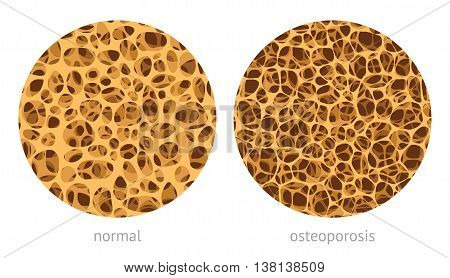 Bone spongy structure vector illustration normal and with osteoporosis