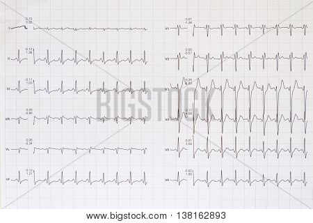 Top view of a complete electrocardiogram scheme