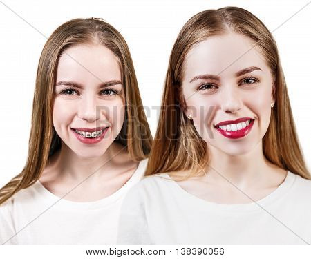 Young woman with perfect teeth before and after braces isolated on white