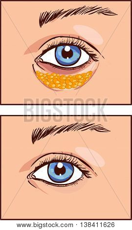 vector illustration of a eye aesthetic blepharoplasty