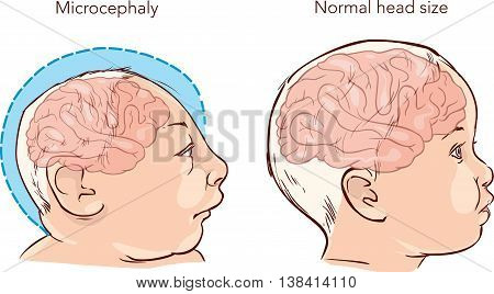 Illustration of a newborn baby with Microcephaly disease caused by Zika virus