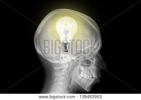 Radiography of skull with lit lightbulb inside
