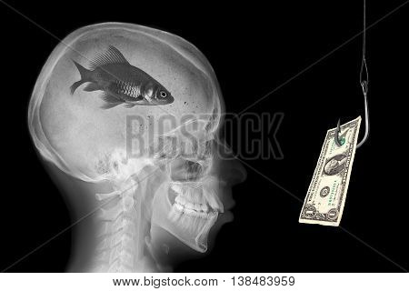 Radiography of skull with fish in the brain