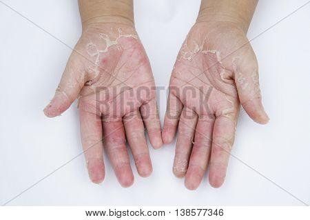 Dry hands, peel ,Infectious inflammatory skin diseases
