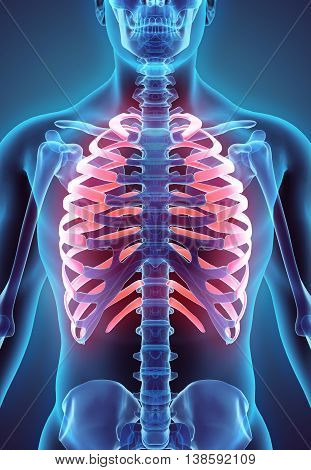 3D Illustration Of Ribs, Medical Concept.