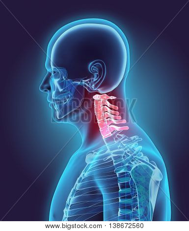 3D Illustration Of Cervical Spine, Medical Concept.