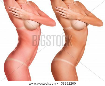 Female naked body with tunlines before and after sunburn isolated on white background
