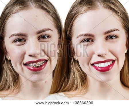 Young woman with perfect teeth before and after braces over white background