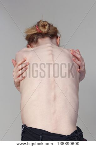 Woman showing her bare skinny bony back