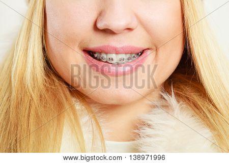 face with dental braces studio closeup dental health concept