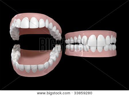 Teeth And Gums Open And Closed