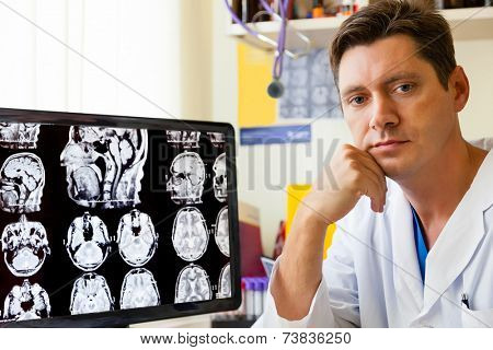 Doctor at monitor with an MRI scan of the Brain on Monitior
