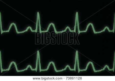 Glowing Electrocardiogram Line
