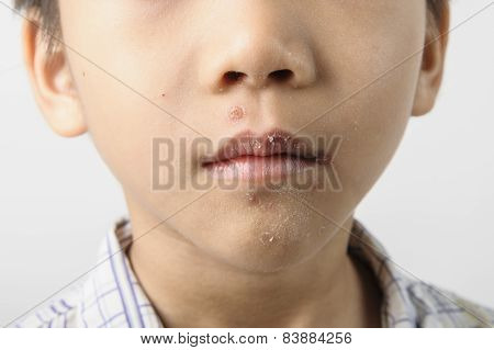 Herpes On Kid Mouth Become Dry