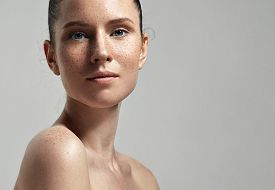 picture of freckle face  - freckles woman - JPG