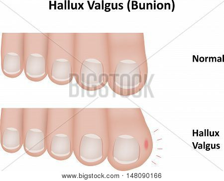 Hallux valgus, also known as a bunion