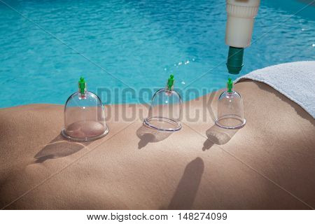 Cupping Therapy, Spa, Woman Doctor Removes Cups From The Patient's Back