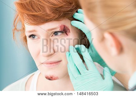 Girl With Wound On Face