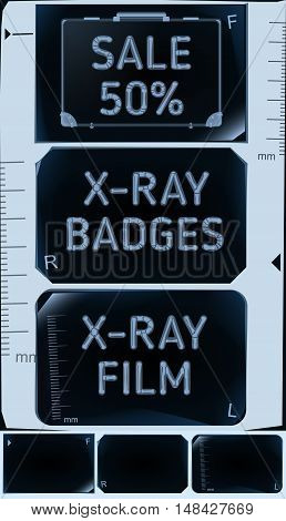 X-ray banners. Roentgen badges set. Sale 50%. Vector illustration