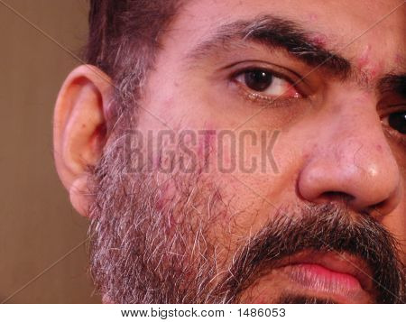 Close Up Of A Man With Skin Malady