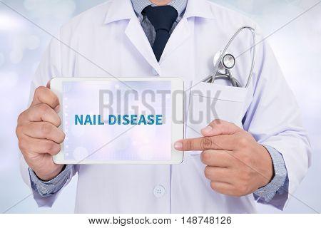 NAIL DISEASE Doctor holding digital tablet doctor work hard