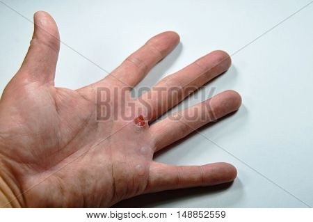 blister on hand after work on white background