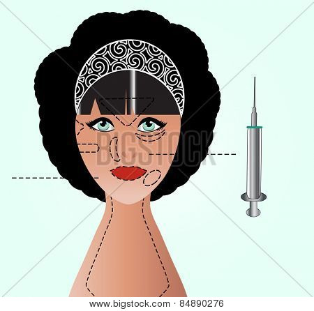 Face  with markings for injections surgery