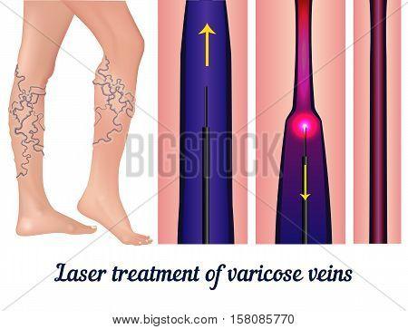 Laser treatment of varicose veins. Treatment of varicose veins laser. The procedure for gluing the veins. Vector illustration.