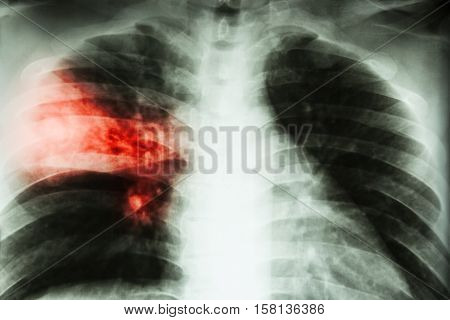 Lobar pneumonia . film chest x-ray show alveolar infiltration at right middle lobe due to tuberculosis infection .