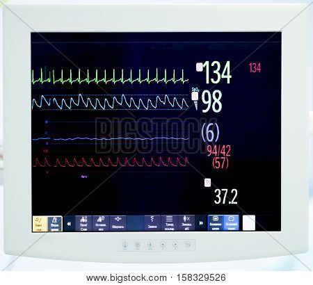 heart monitor during surgery with indications of vital body functions